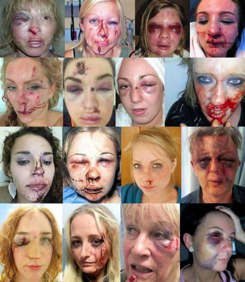sweden-rape-victims-1